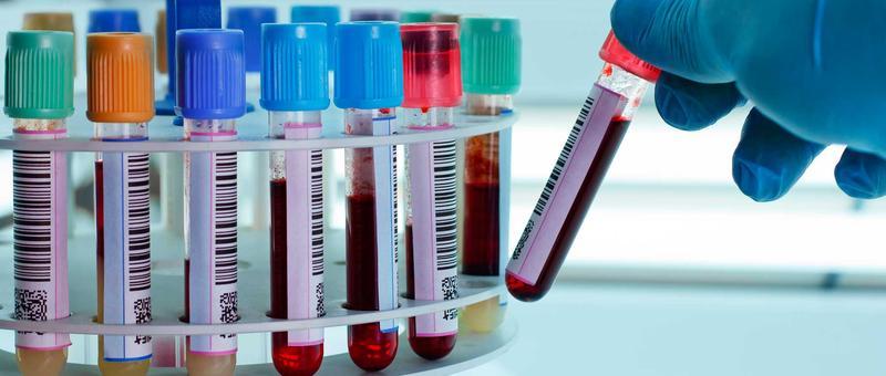http://www.quo.es/var/quo/storage/images/salud/que-hacen-con-la-sangre-despues-de-un-analisis/163651-16-esl-ES/que-hacen-con-la-sangre-despues-de-un-analisis_ampliacion.jpg